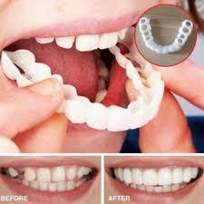 Perfect Smile Veneers - ดี ไหม - pantip - ร้านขายยา