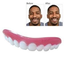 Perfect Smile Veneers - ของ แท้ - ผลกระทบ - วิธี ใช้